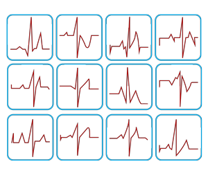 To Which Lead View Should We Set The ECG Monitor?